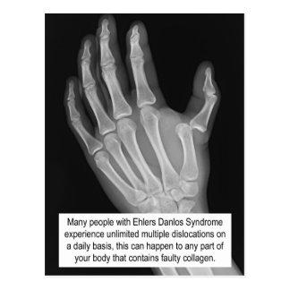 EDS Awareness Postcard