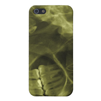 iphone 4 - Jaw X-ray (right handed) Yellow iPhone 5/5S Case