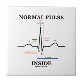Normal Pulse Inside (ECG/EKG Electrocardiogram) Small Square Tile