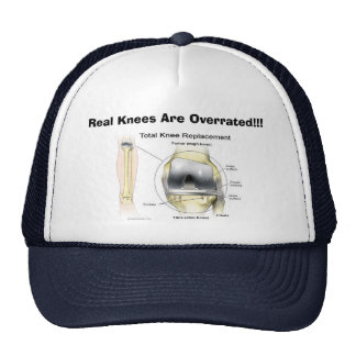 Real Knees Are Overrated!!! Cap